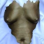 Abformungen von Brust (Zackig)